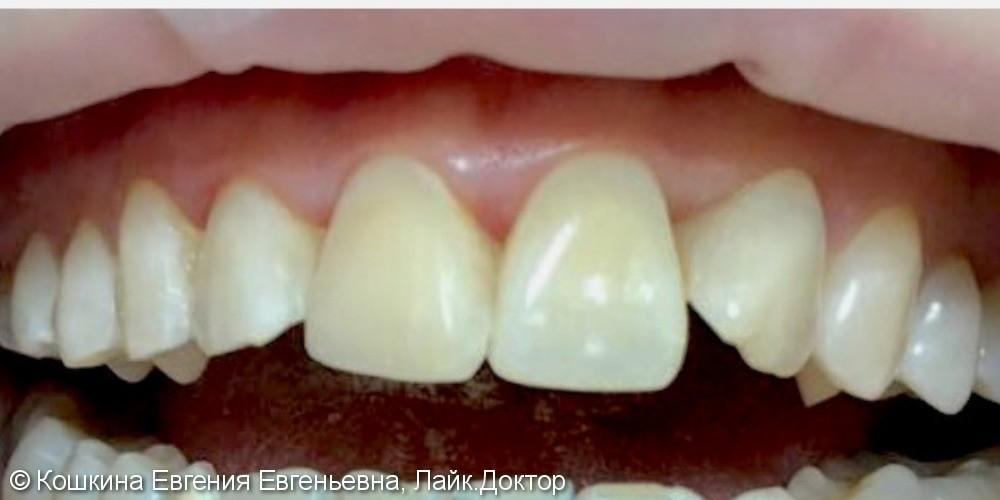 Реставрация передних зубов - фото №2