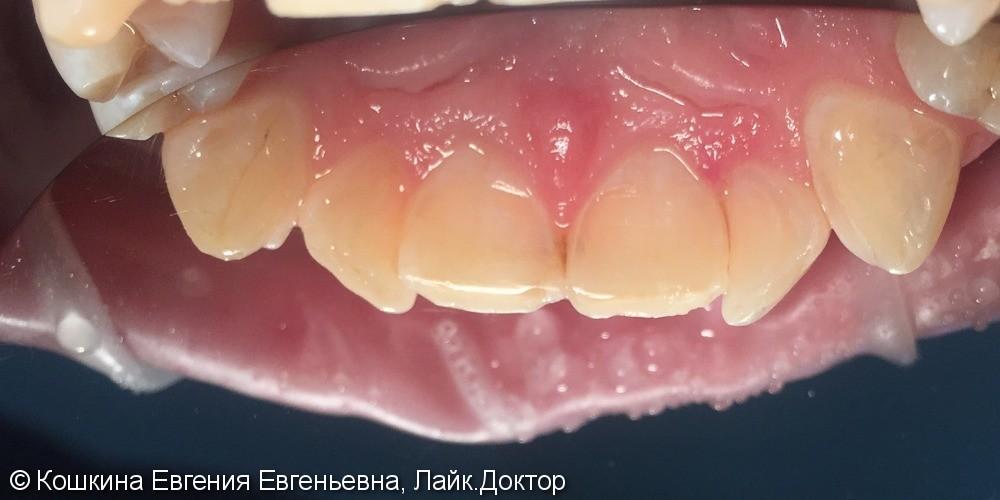 Кариес дентина зуба 22 - фото №2