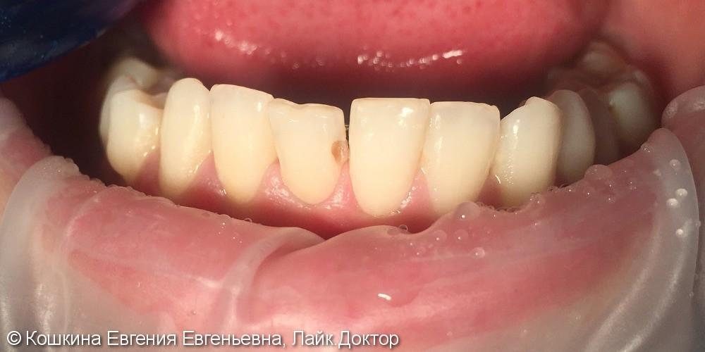Лечение кариеса зуба 41. - фото №1