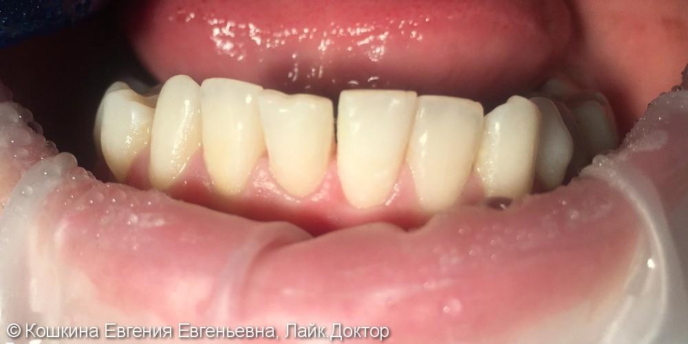 Лечение кариеса зуба 41. - фото №2
