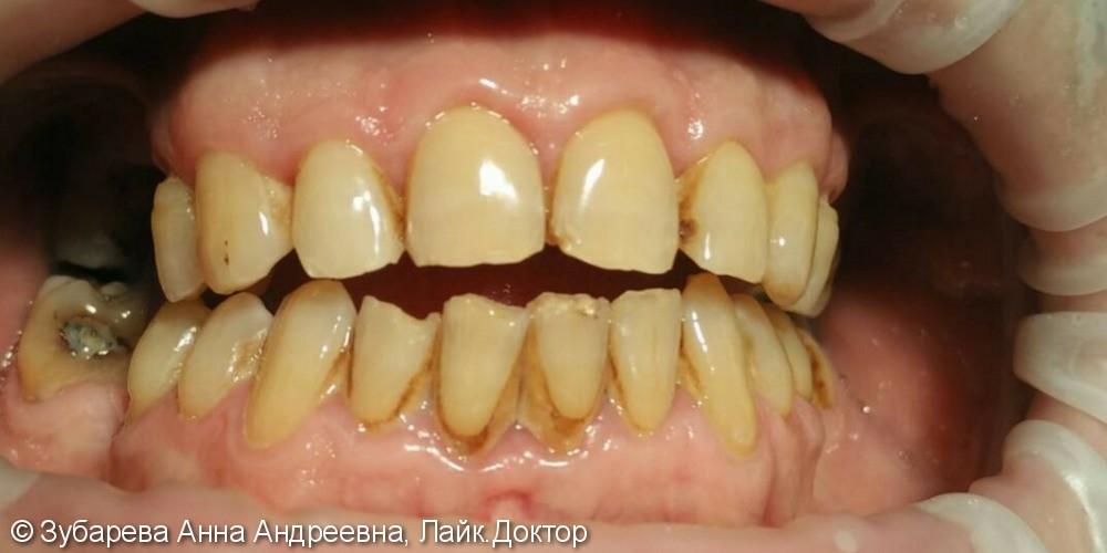 Профилактика и гигиена, до и после чистки пигментированного налёта - фото №1