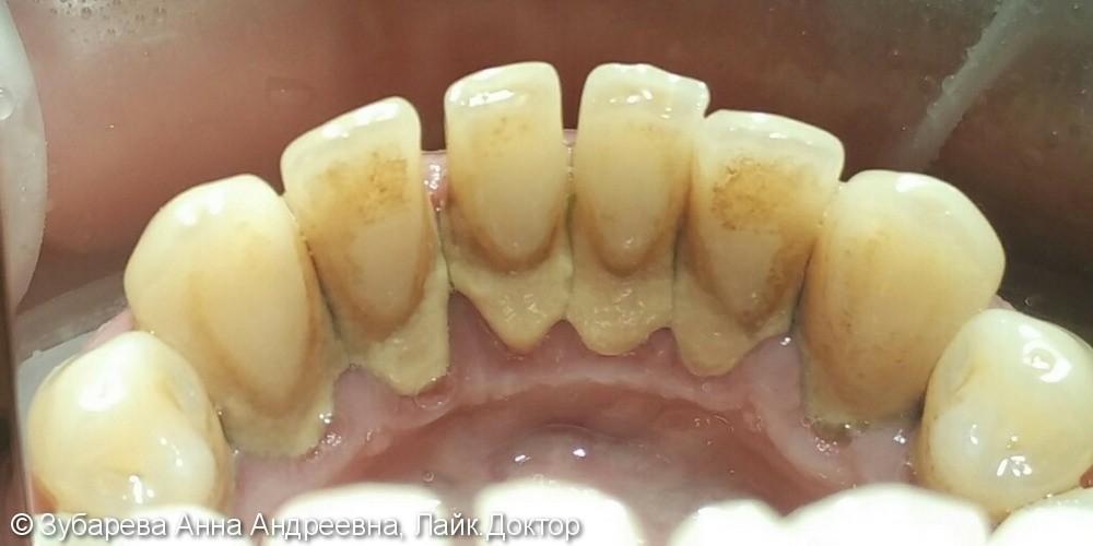 Закрытый кюретаж пародонтальных карманов в области зубов верхней и нижней челюсти - фото №1