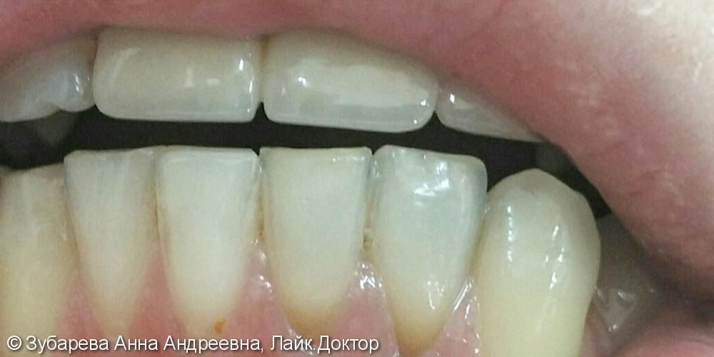 Внутрикоронковое отбеливание зубов - фото №2