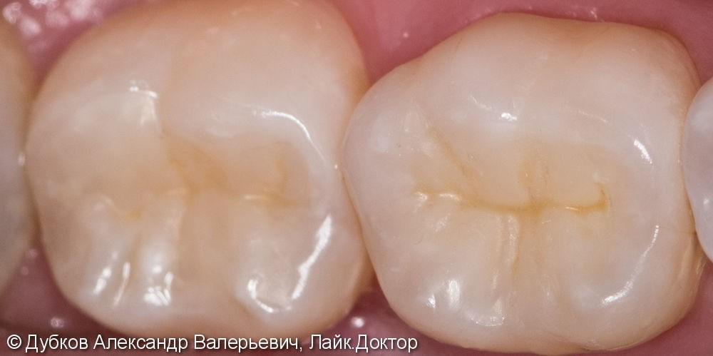 Лечение глубокого кариеса на молярах, до и после лечения - фото №9