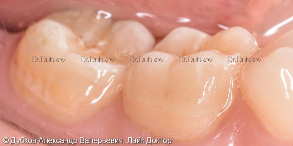 Восстановление двух зубов керамическими вкладками, до и после - фото №5