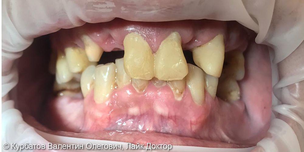 Имплантация системой Osstem - фото №1