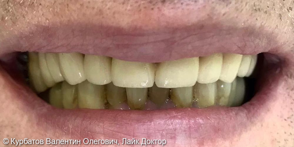 Имплантация системой Osstem - фото №2