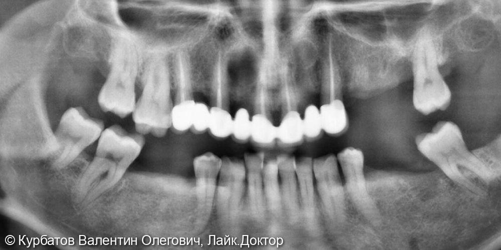 Имплантация системой Osstem - фото №3