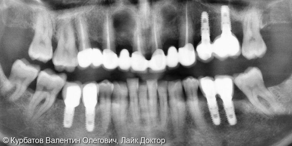 Имплантация системой Osstem - фото №4