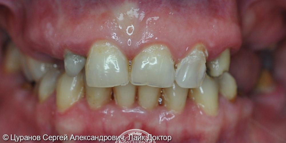 Комплексное хирургическое и ортопедическое лечение - фото №1