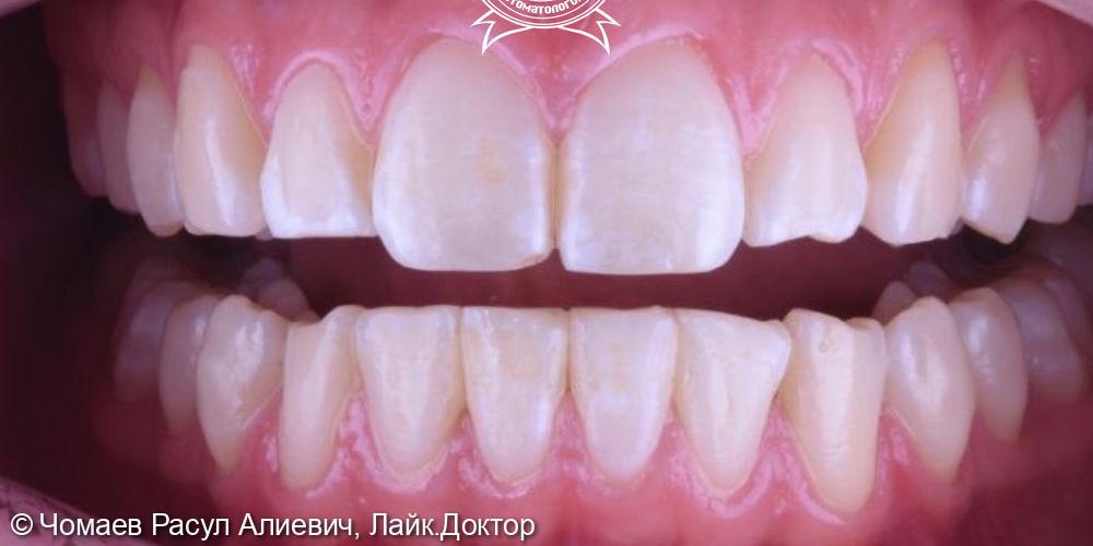 Ортодонтическое лечение исправления патологического прикуса системой элайнеров Flexiligner - фото №2