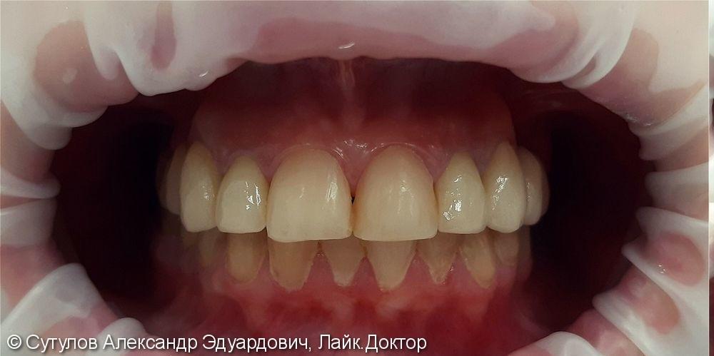Протезирование зубов металлокерамическими коронками и мостовидными протезами - фото №1