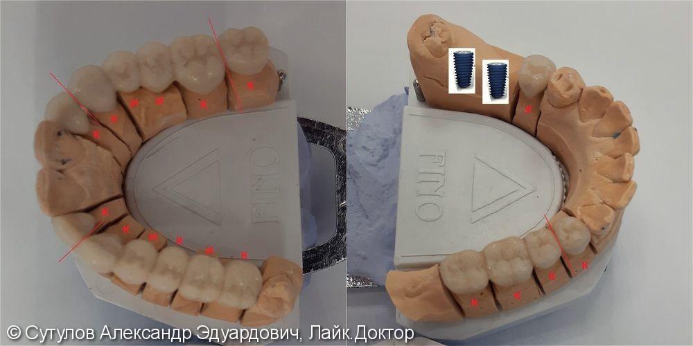 Протезирование зубов металлокерамическими коронками и мостовидными протезами - фото №3