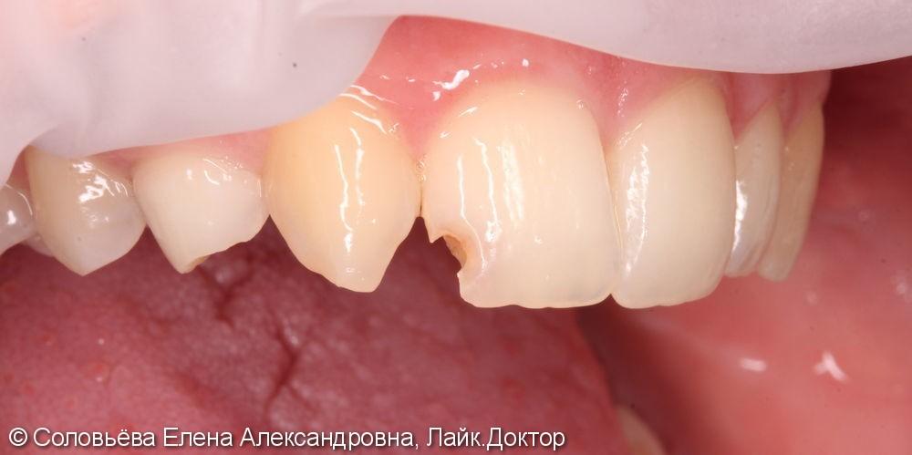 Реставрация скола центрального зуба - фото №1