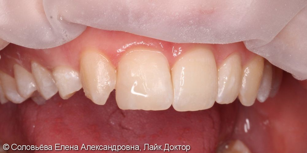 Реставрация скола центрального зуба - фото №2