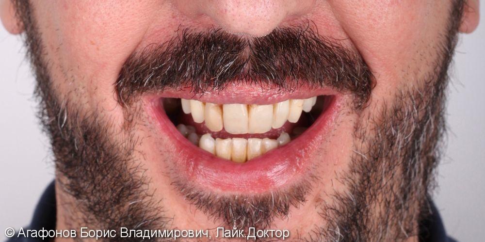 Комплексная эстетическая и функциональная реабилитация верхней и нижней челюсти - фото №1
