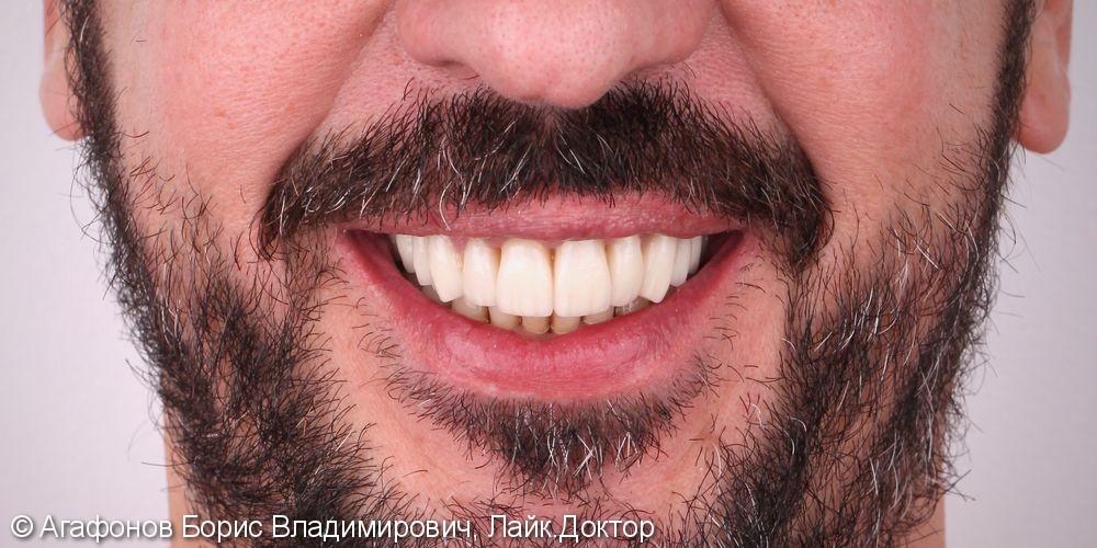 Комплексная эстетическая и функциональная реабилитация верхней и нижней челюсти - фото №6
