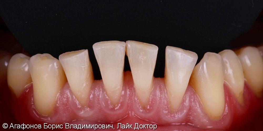 Эстетическая реабилитация четырех нижних резцов нижней челюсти - фото №1