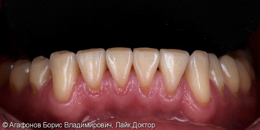 Эстетическая реабилитация четырех нижних резцов нижней челюсти - фото №2