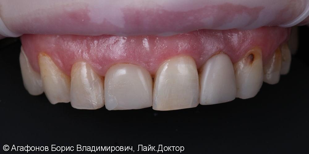 Керамические коронки/виниры E.max на верхнюю челюсть - фото №1
