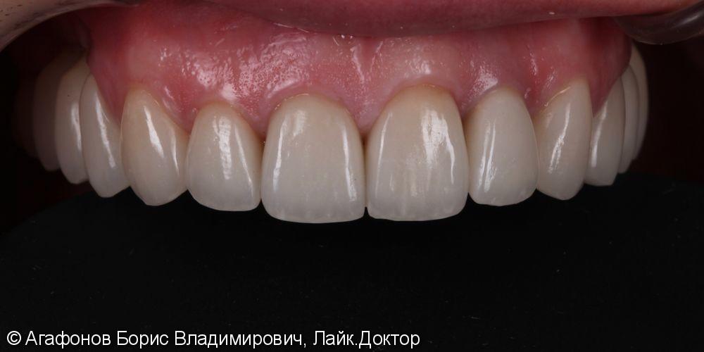 Керамические коронки/виниры E.max на верхнюю челюсть - фото №6