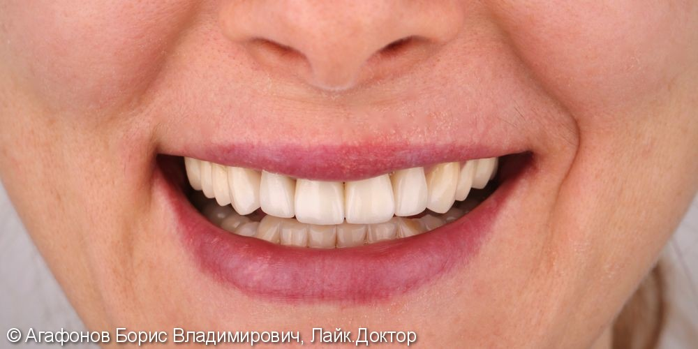 Керамические коронки и виниры верхней челюсти - фото №4
