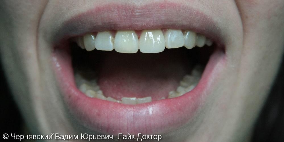 Реставрация зуба цельнокерамической эндокоронкой - фото №3