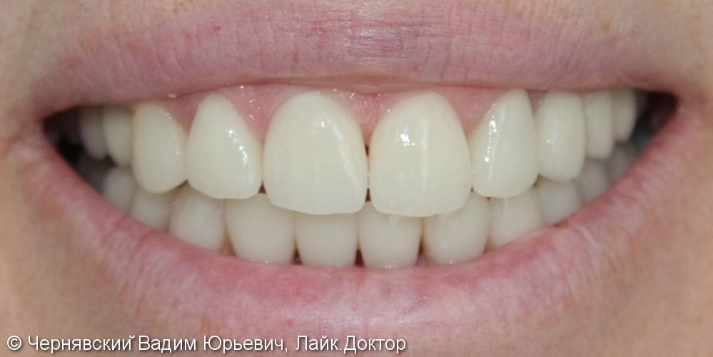 Реставрация зубов цельнокерамическими винирами - фото №2