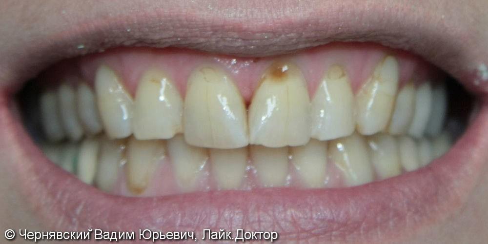 Реставрация улыбки винирами - фото №1