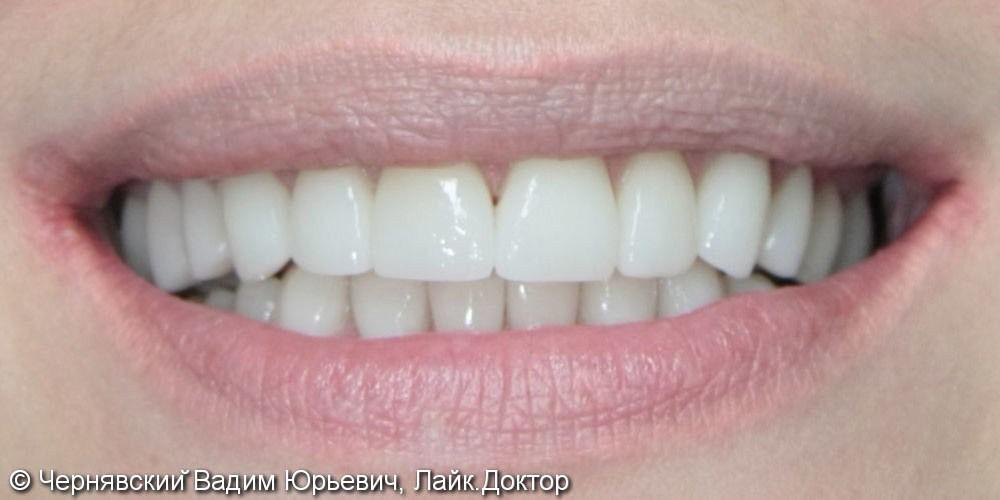 Реставрация улыбки винирами - фото №2