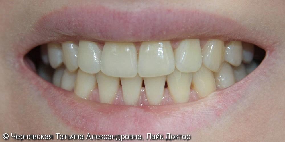 Профессиональное отбеливание зубов Beyond Polus - фото №1
