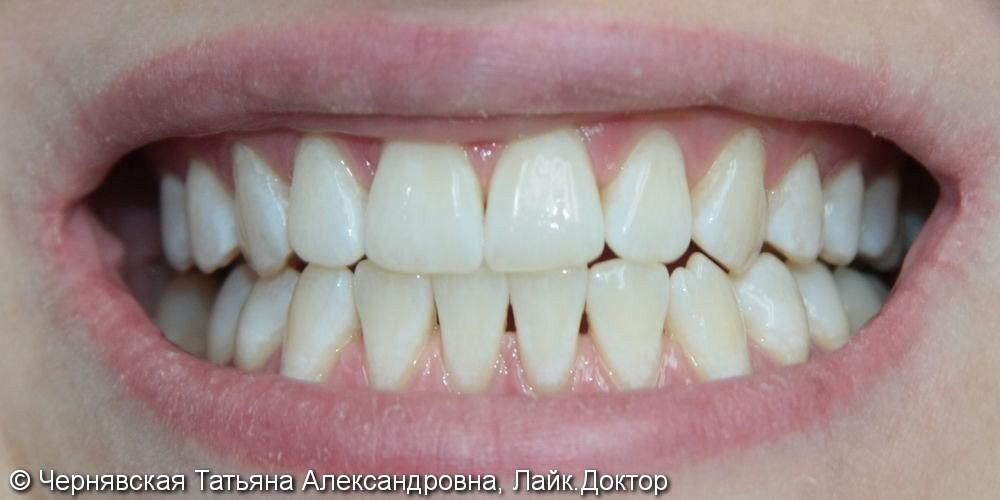Профессиональное отбеливание зубов Beyond Polus - фото №2