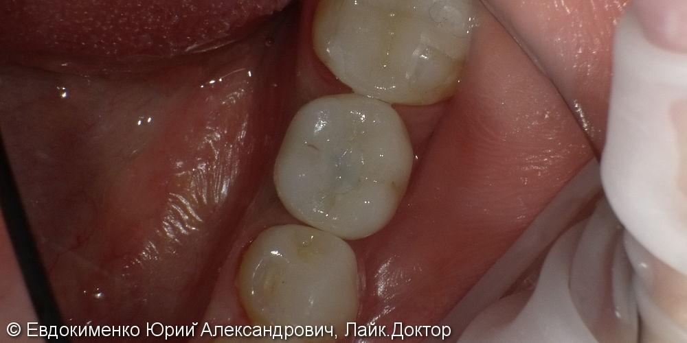 Установка цельнокерамической коронки на имплант MIS, фото до и после - фото №4