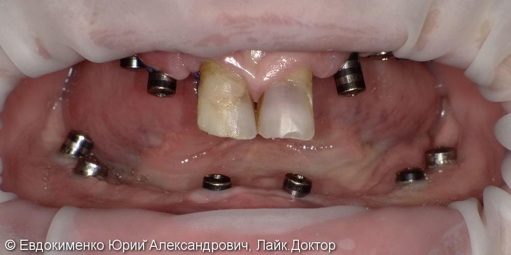 Установка полных зубных протезов на импланты - фото №1