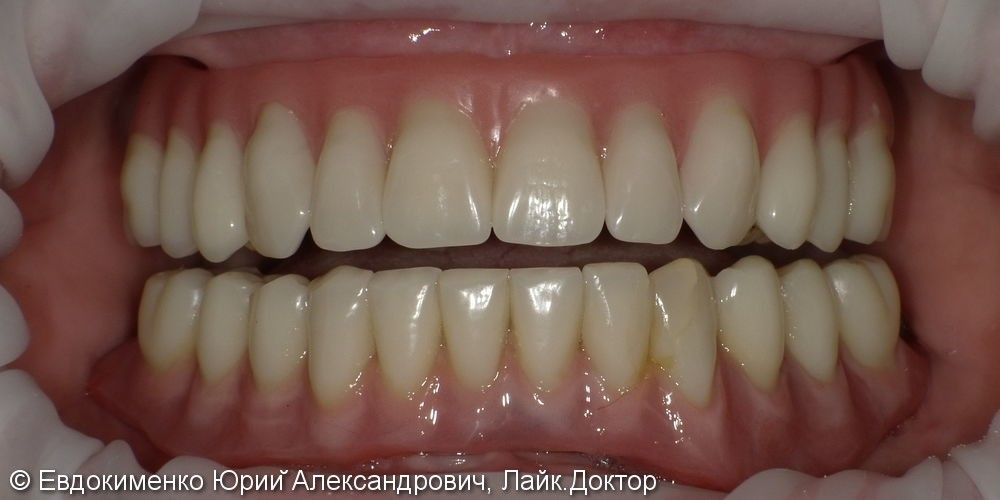 Установка полных зубных протезов на импланты - фото №7