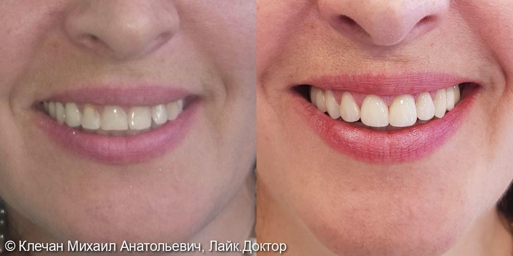 Комплексное протезирование на зубах и имплантатах циркониевыми коронками и винирами - фото №1
