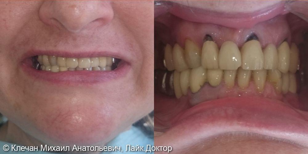 Комплексное протезирование зубов и имплантатов металлокерамическими коронками и мосовидными протезами - фото №1