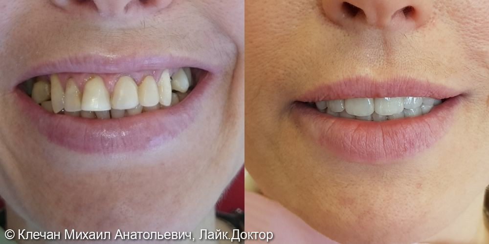 Диоксид циркониевые коронки на зубах и имплантатах - фото №1