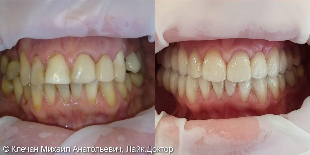 Диоксид циркониевые коронки на зубах и имплантатах - фото №2