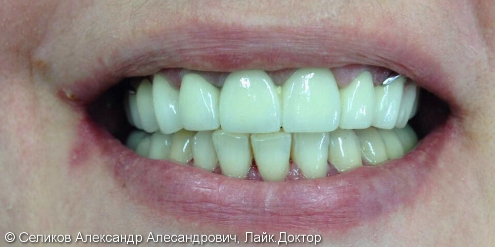 Лечение и протезирование зубов мостовидным протезом на 7 зубов - фото №2