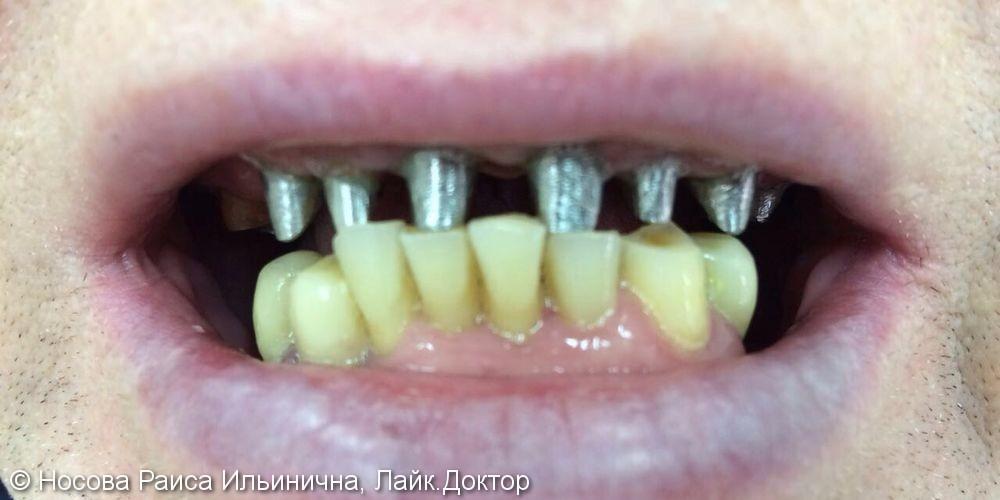 Лечение и протезирование зубов мостовидным протезом на верхнюю челюсть - фото №1