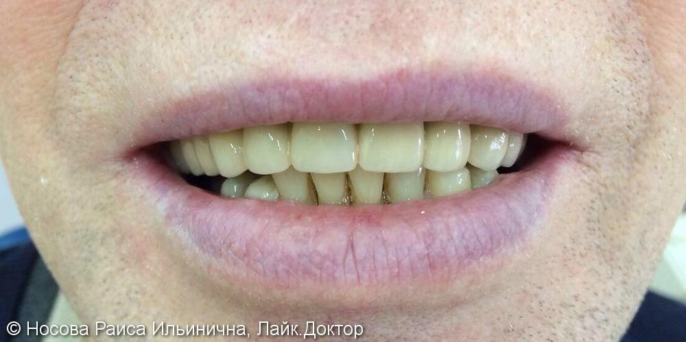 Лечение и протезирование зубов мостовидным протезом на верхнюю челюсть - фото №2