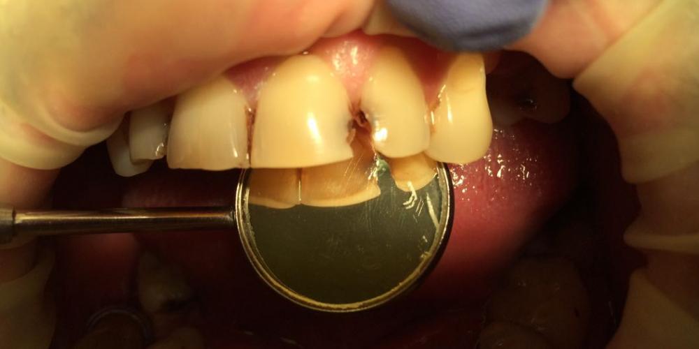 Лечение кариеса и реставрация зубов, до и после - фото №1