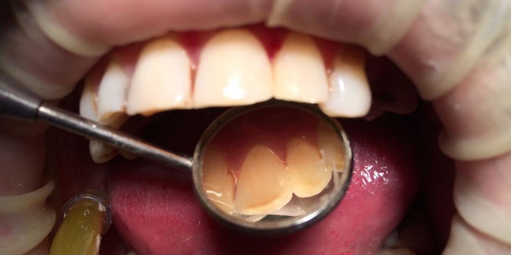 Лечение кариеса и реставрация зубов, до и после - фото №2