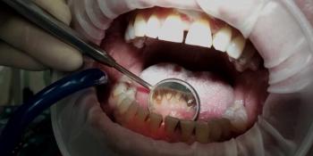 Комплекстная чистка зубов Air-flow + ультразвук + фторирование - фото №1