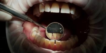 Комплекстная чистка зубов Air-flow + ультразвук + фторирование - фото №2