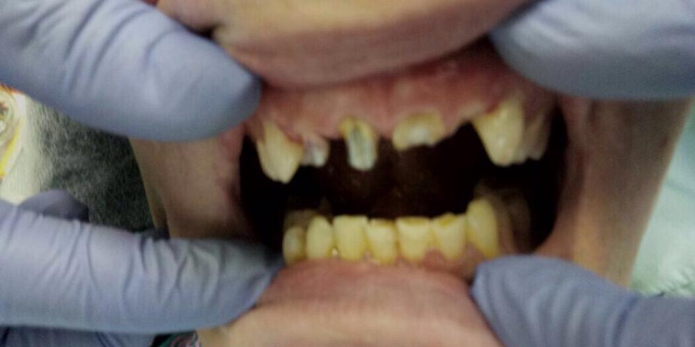 Лечение и протезирование зубов мостовидным протезом на 4 зуба - фото №1