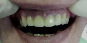 Лечение и протезирование зубов мостовидным протезом на 4 зуба - фото №2