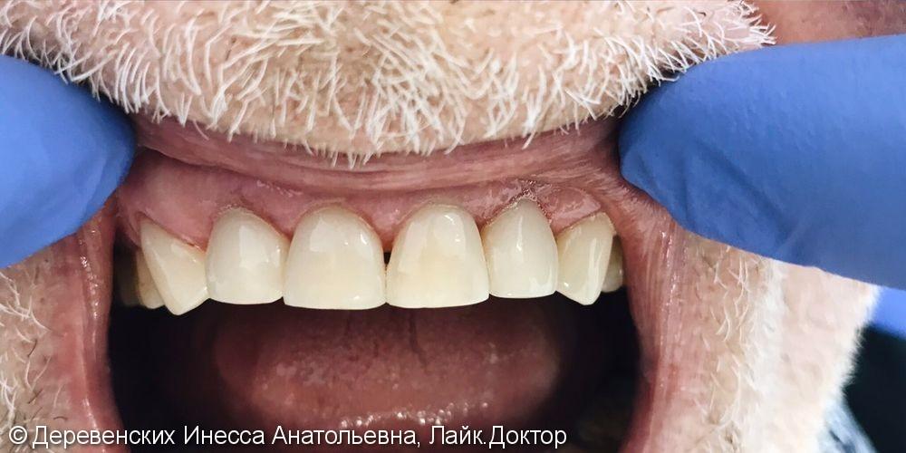 Вторичный кариес 6 зубов верхней челюсти, до и после лечения - фото №2