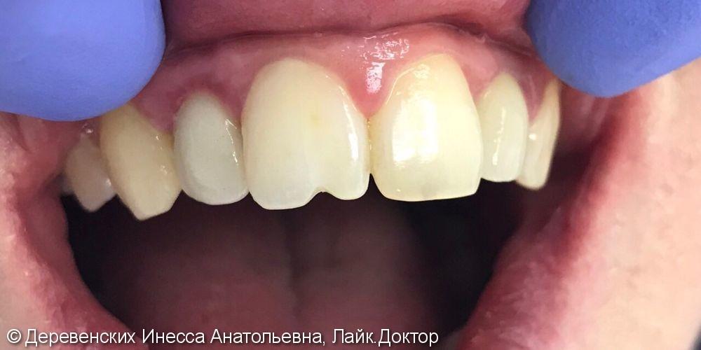 Фронтальная реставрация зуба 11, нанокомпозит Filtek z550 - фото №1